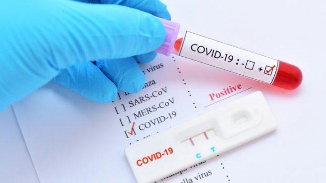 COVID-19 di Depok, Rapid Test 1.433 Orang dan 40 Positif Corona